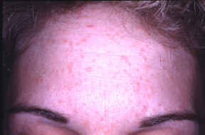 hpv skin changes