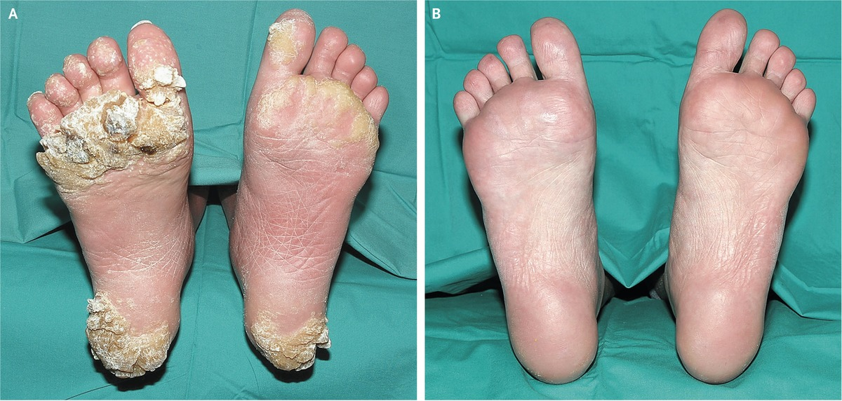 warts toes treatment dysbiosis yeast infection