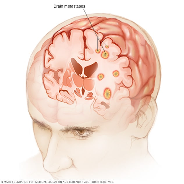 chicken papilloma disease parazitoza cerebrala
