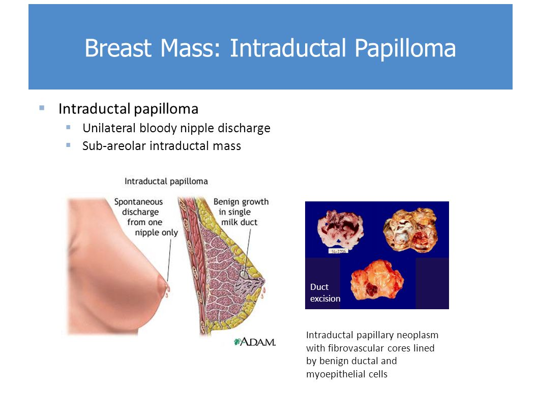 breast duct papilloma treatment