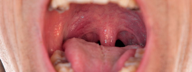 papiloma en la boca como se contagia