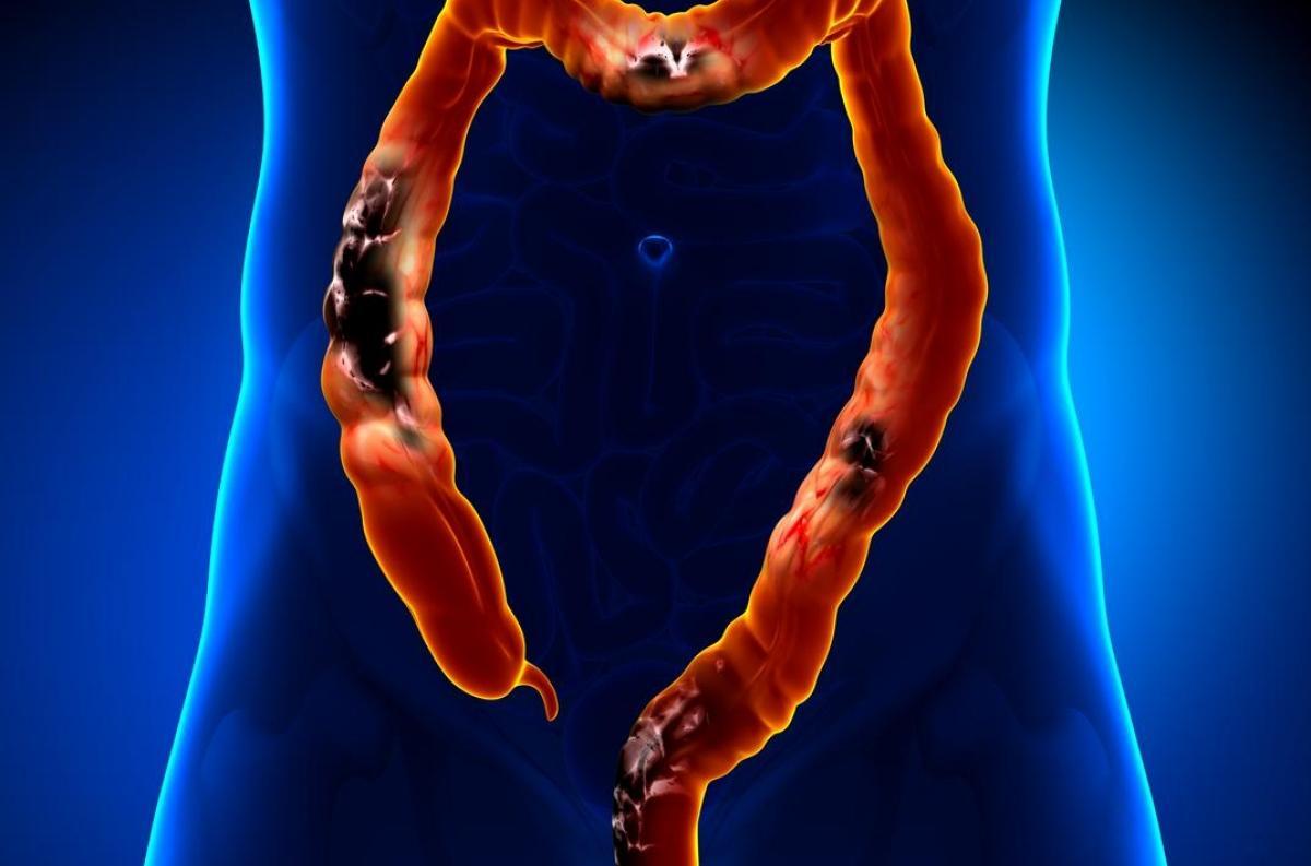 cancer colorectal stade 4 esperance de vie breast intraductal papilloma hyperplasia