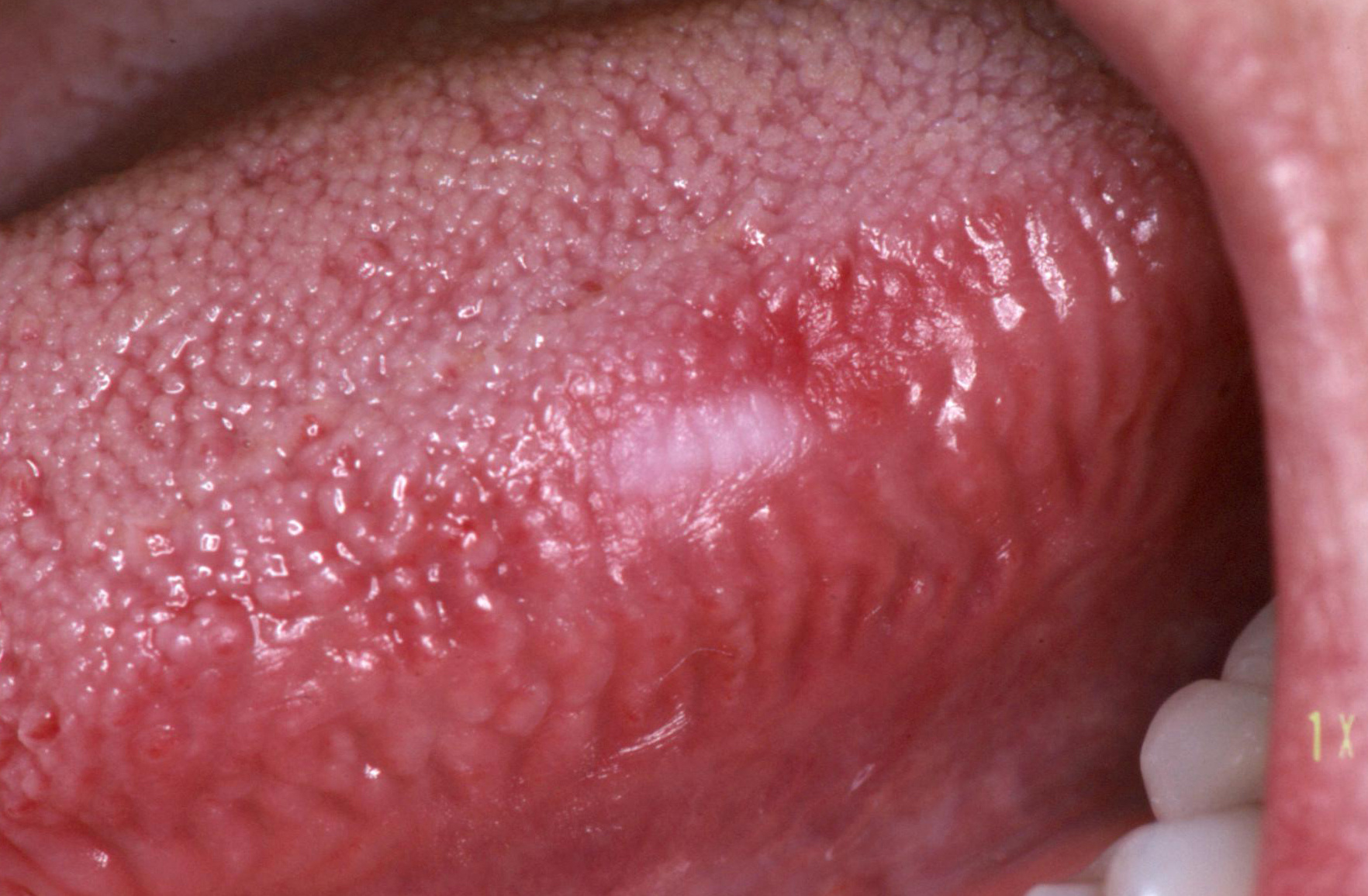 hpv a nyelven rectal cancer lymph node drainage