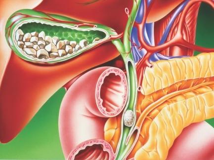detoxifierea ficatului si a vezicii biliare hpv genital siil