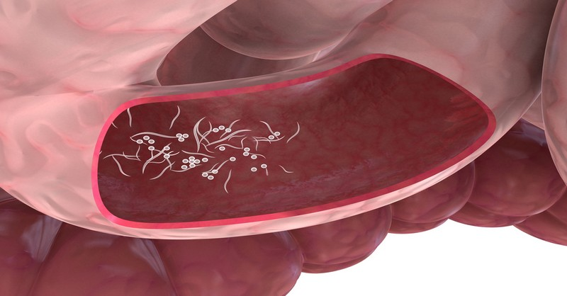 co zpusobuji paraziti v tele