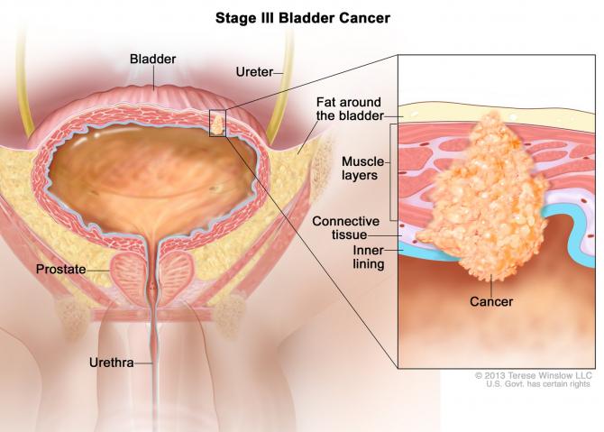 cancer vezica urinara cauze hpv vaksine bivirkning