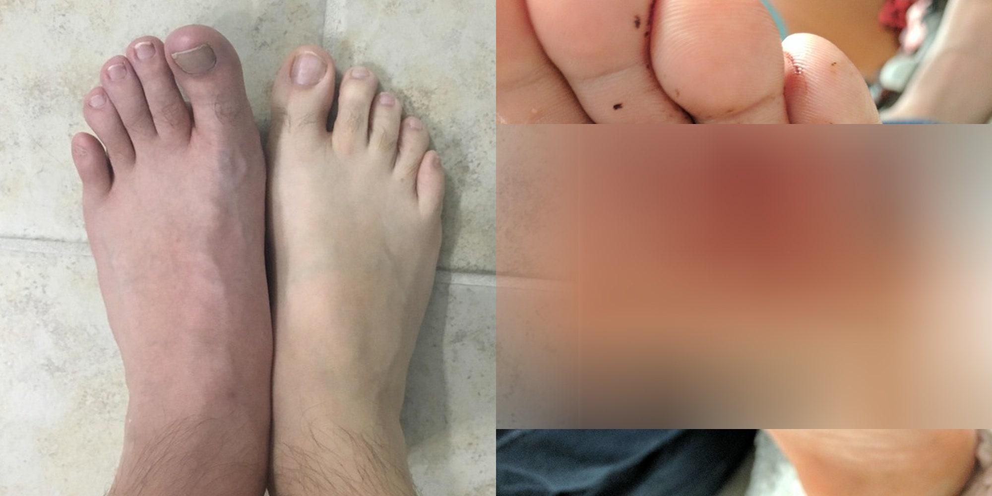 plantar wart on foot itchy papilloma virus sintomi perdite