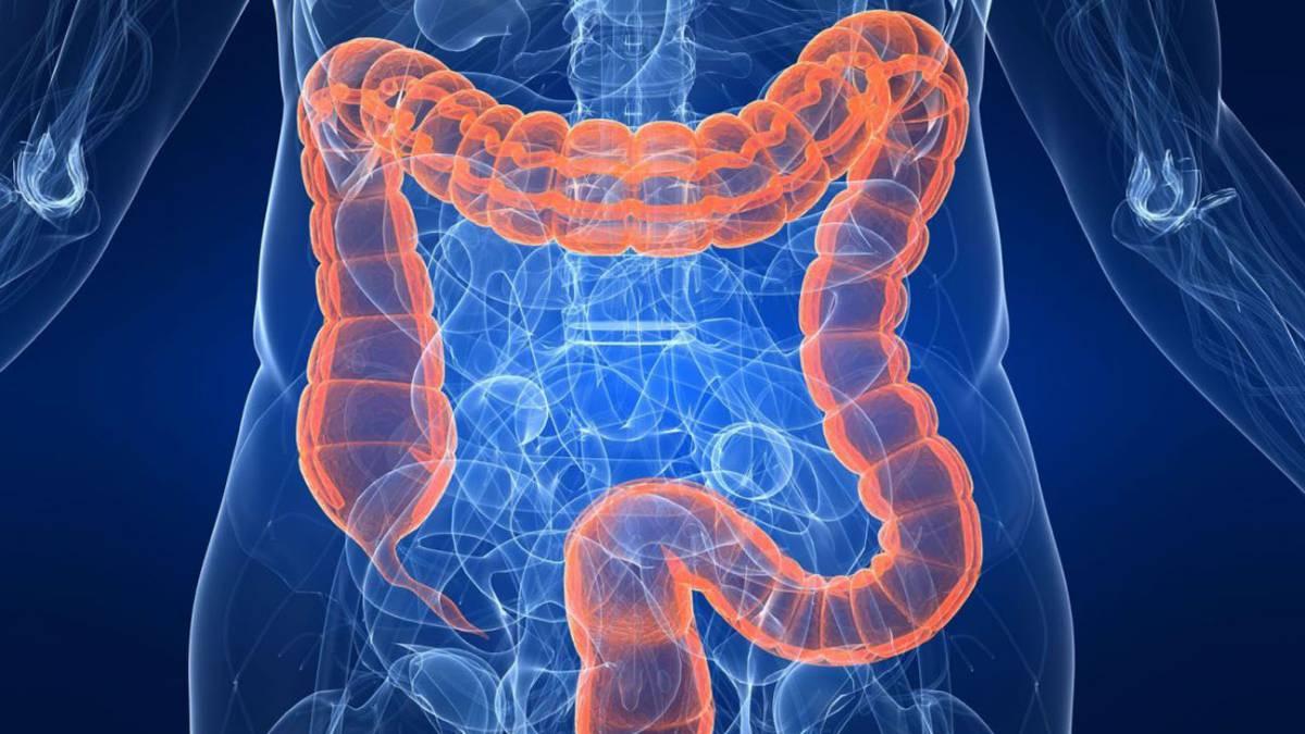 cancer de colon edad joven