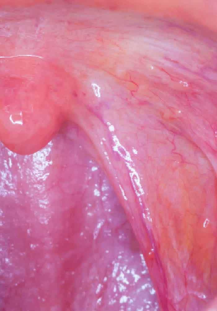 detoxifiant foie pancreas endometrial cancer stories