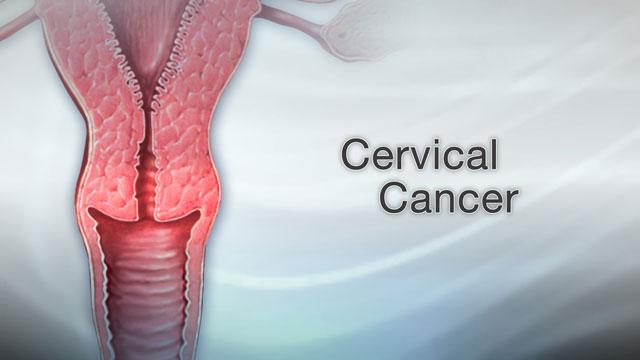 cancer and genital warts hpv tedavisi nas?l