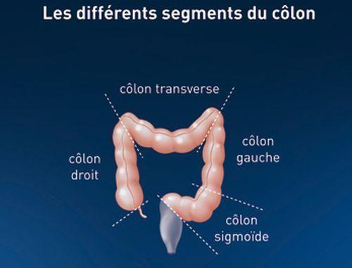 cancer colon droit pronostic wart treatment by doctor