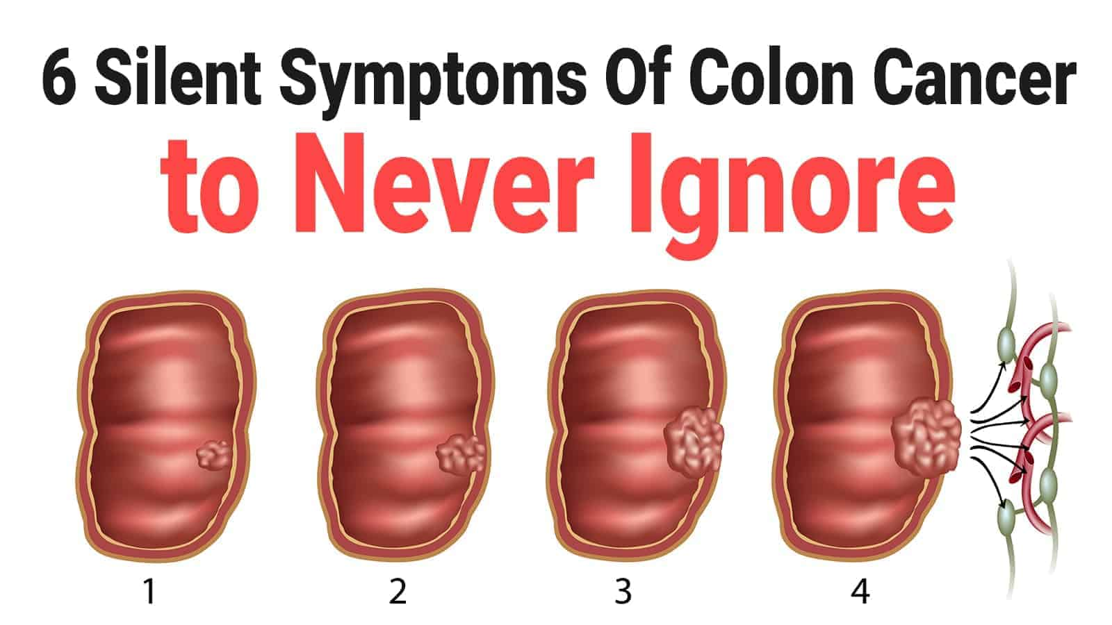 Keighley Williams Surgery Of The Anus Rectum And Colon Cancer Colon Pain