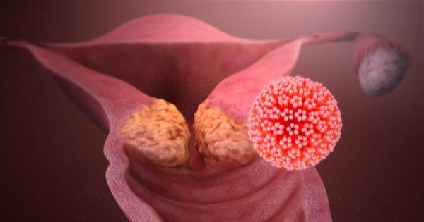 cancer de colo de utero so e causado pelo hpv papillomavirus cause