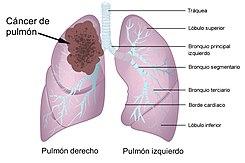 cancer de colon nombre cientifico cancer gastric smoking