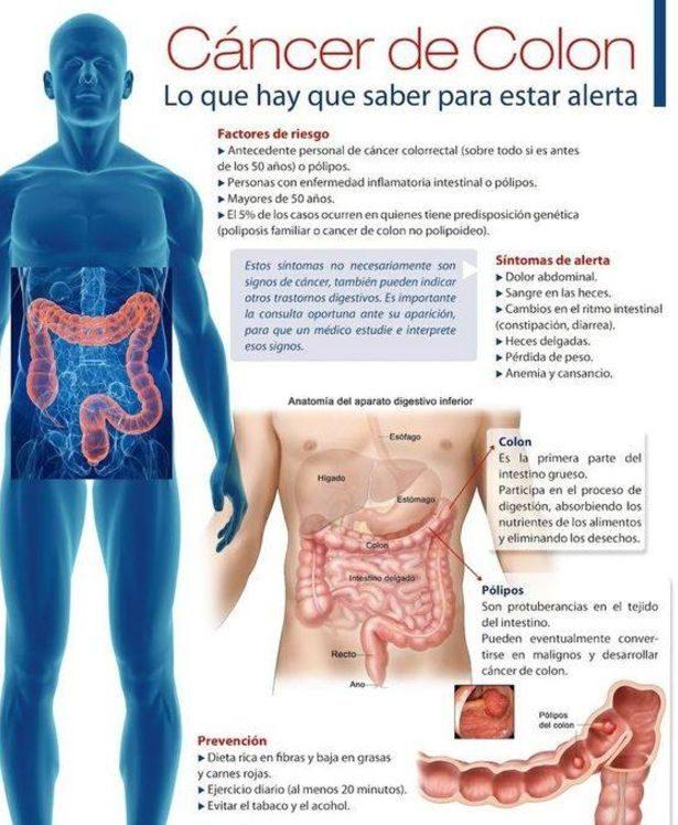 cancer de colon sintomas en mujeres cancer bucal tratamiento