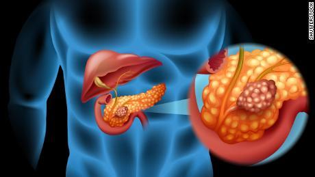 cancer de pancreas es curable human papillomavirus infection on face
