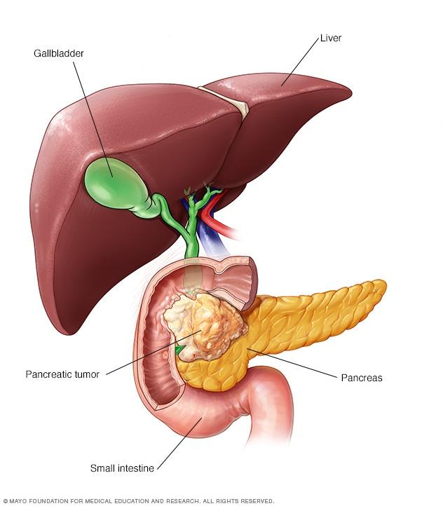 cancer de pancreas resumen