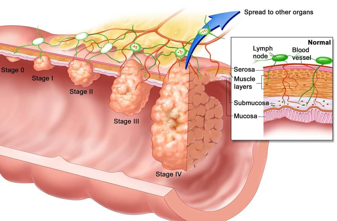 cancer de prostata etapa 4 papilloma nhs