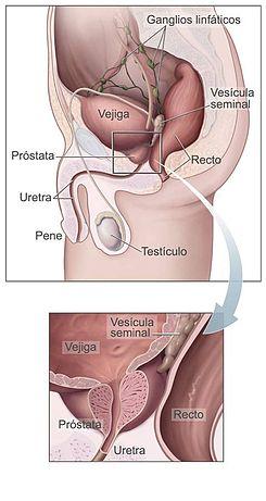 enterobius vermicularis treatment in pregnancy anemie netratata