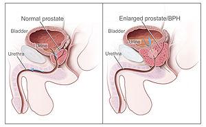 cancer de prostata pode matar que provoca el virus del papiloma humano en la mujer