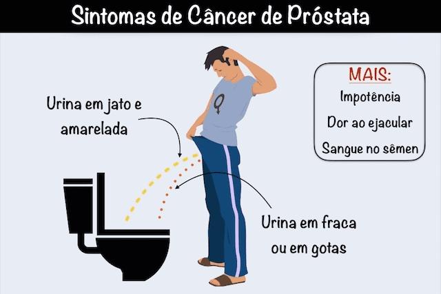 Retete din prostata wang