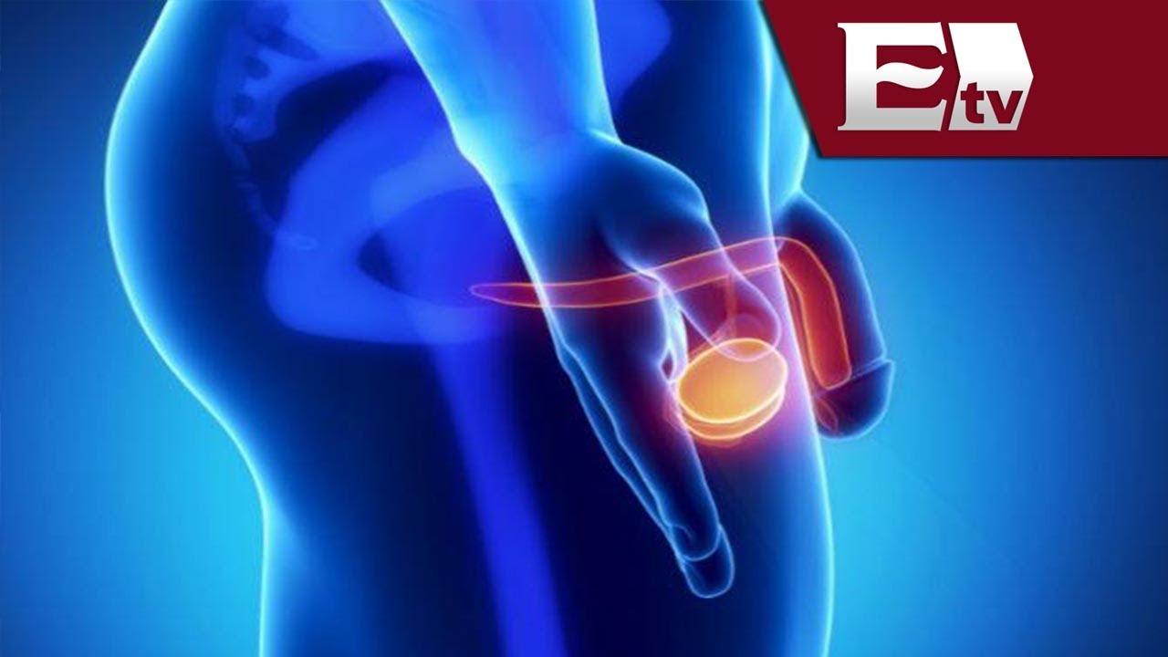 cancer de prostata que es sintomas cancer na orofaringe