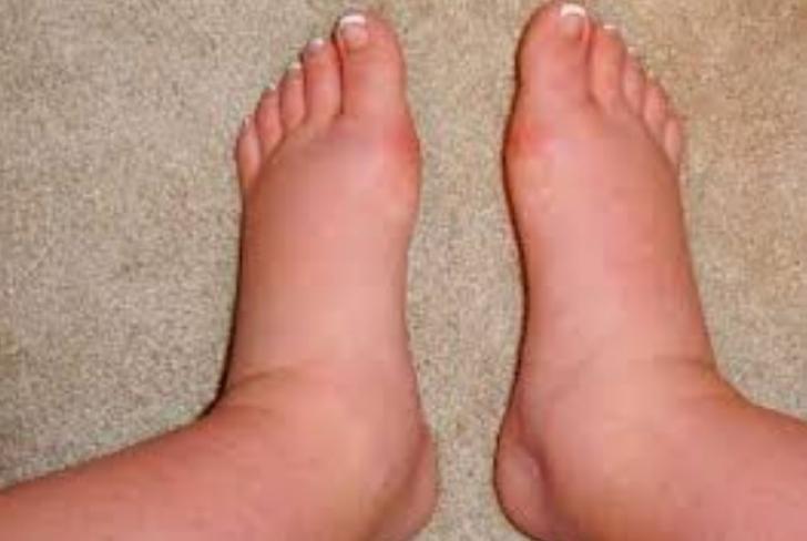 cancer la unghiile de la picioare dysbiosis lactofiltrum