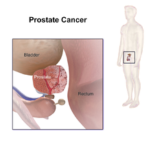 cancer malign prostata
