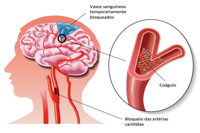 hpv virus beim mann cancer de prostata diagnostico diferencial