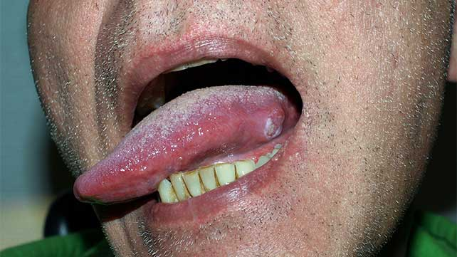 cancer of the tongue caused by hpv papiloma humano en mujeres verruga
