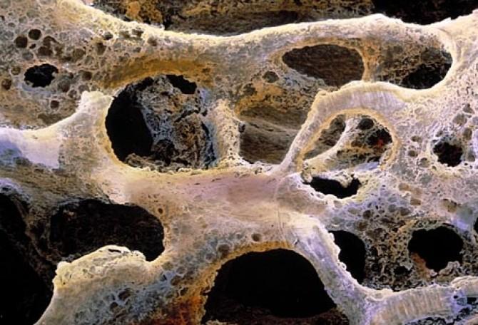 simptome cancer rinichi