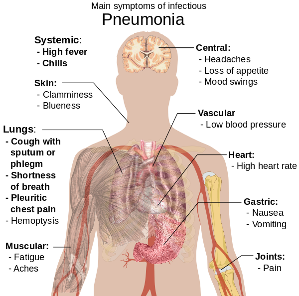 cancer pulmonar la copii hpv in women