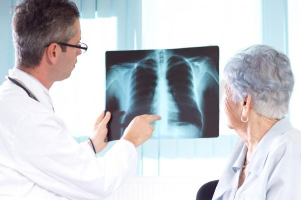 cancer pulmonar scuamos tratament