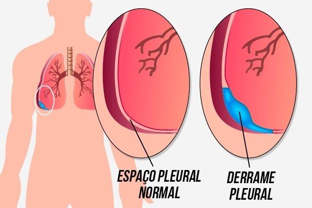 endometrial cancer fatigue hpv under eyelid