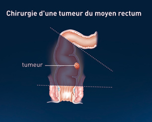 cancer rectal traitement chirurgical papiloma humano es hpv