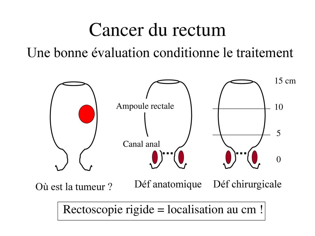 cancer rectal traitement chirurgical hpv treatment boots