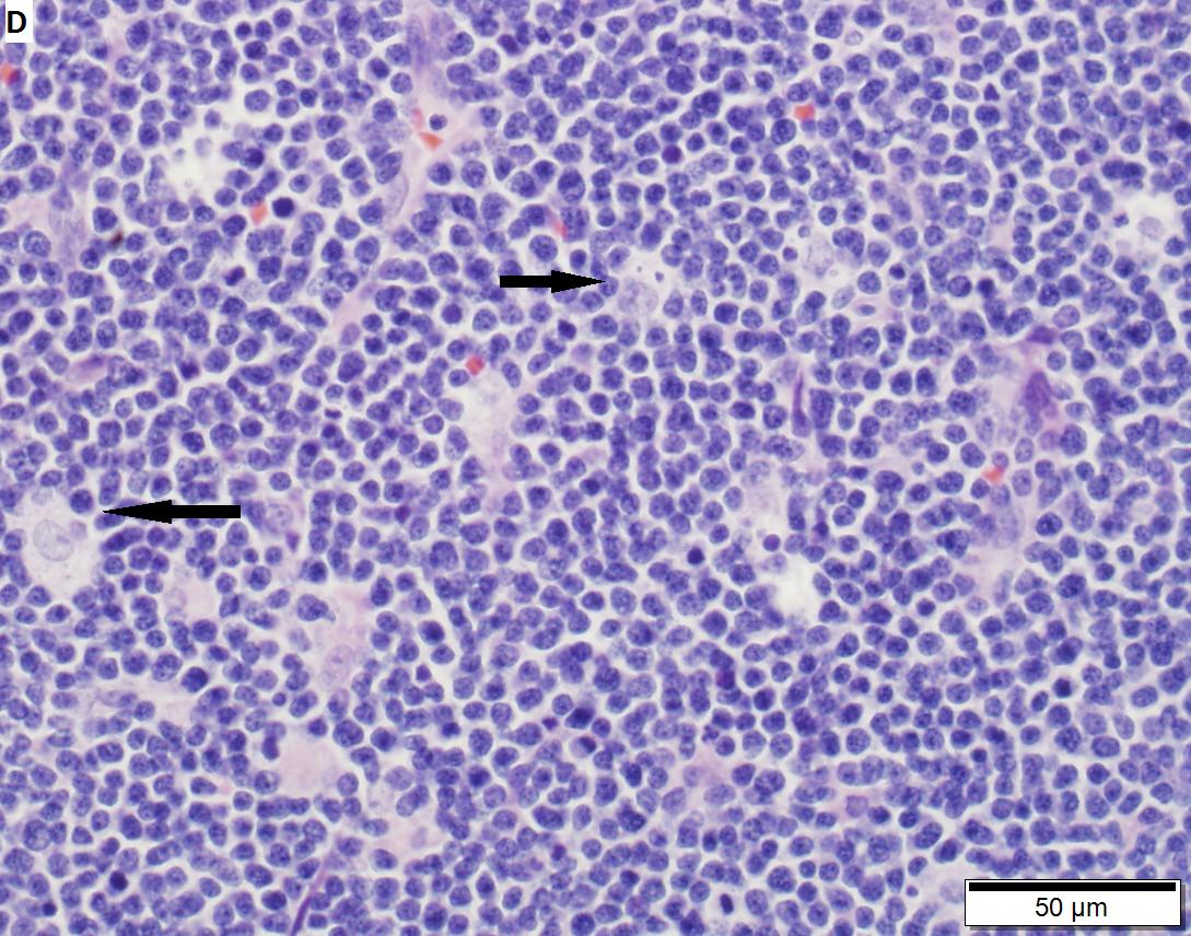 cancer timom tip b2