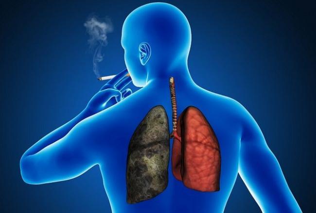 cancerul bronhopulmonar ghimbir paraziti intestinali