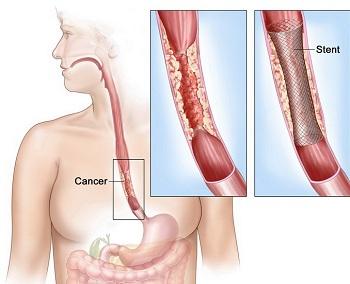 cancerul de esofag tratament