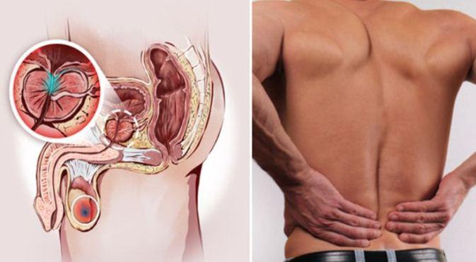 Regimul alimentar in adenomul de prostata