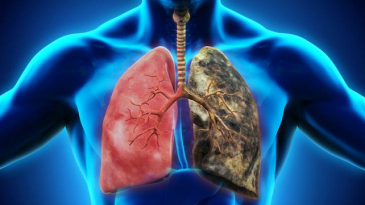 cancerul pulmonar cauze detoxifiere mentala