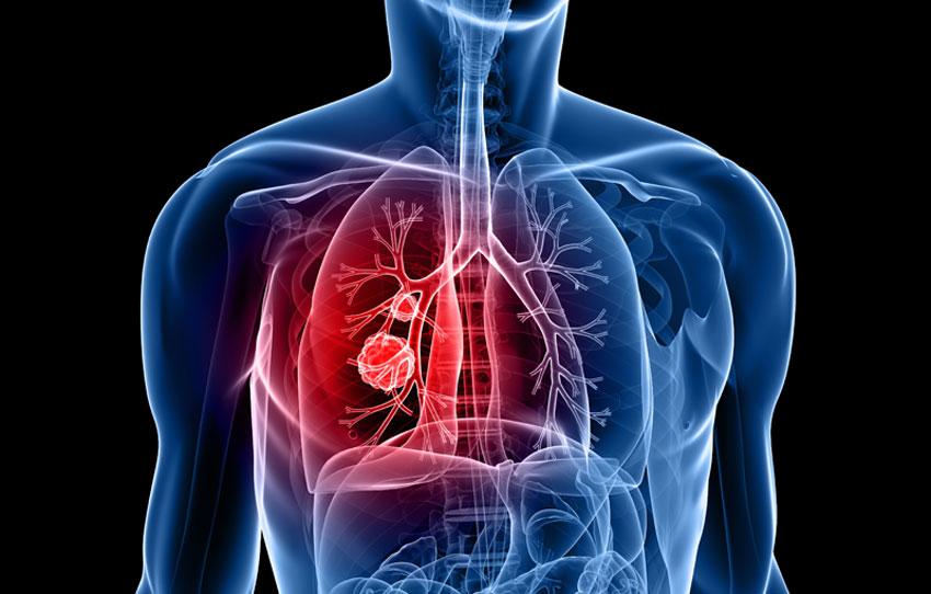 cancerul pulmonar diagnostic storicul epidemiologice