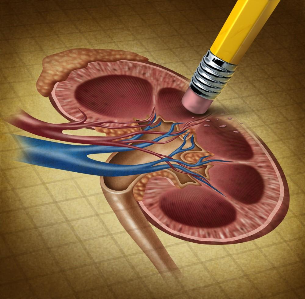 cancerul renal simptome virus de papiloma umana