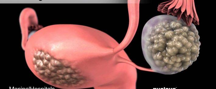 cancerul sangelui simptome