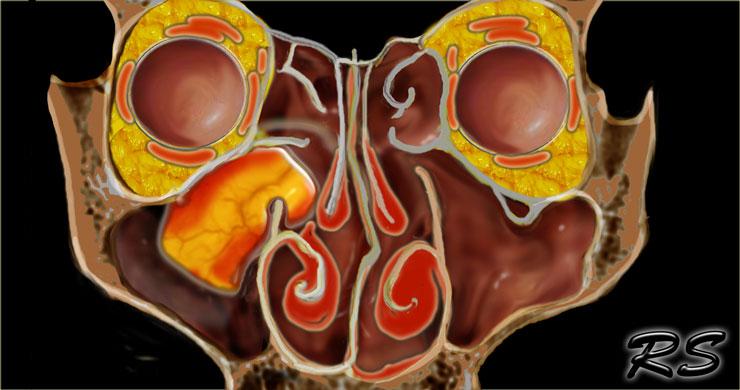 hpv high risk test quest diagnostics cancer peritoneal dolor