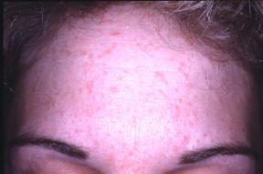 papilloma virus on the skin