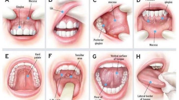 symptoms of hpv papilloma detoxifiere 3 zile fructe