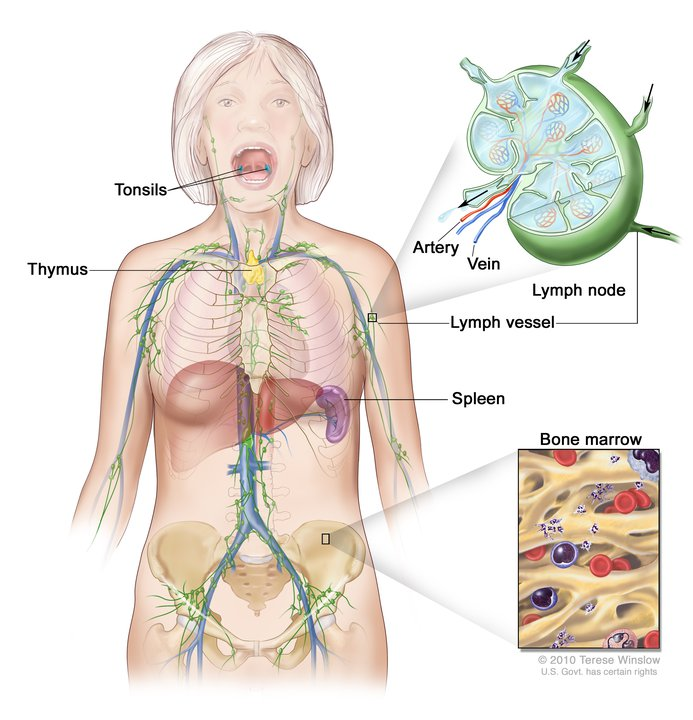 cancer hodgkin linfatico