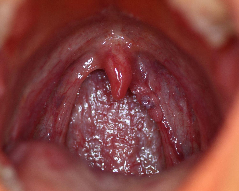 rectal cancer query que es papilomatosis laringea
