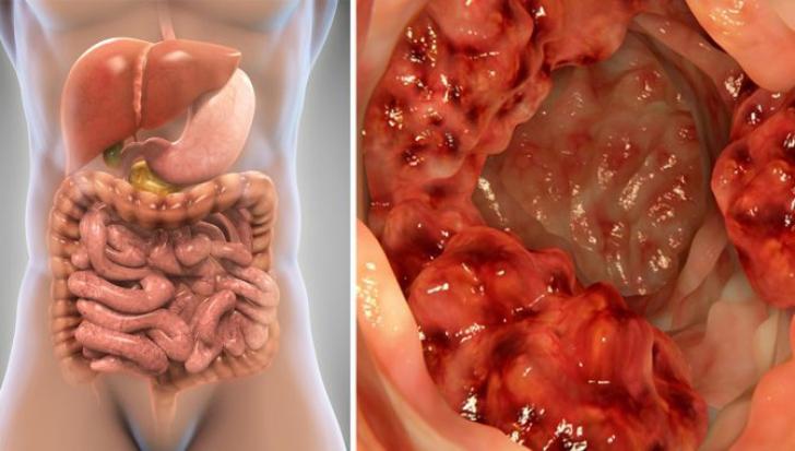 human papillomavirus on the tongue ciuperci p